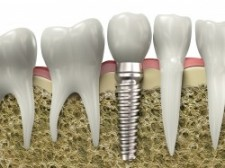 Maryville Dental Implants